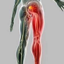 Где находится седалищный нерв: как правильно определить воспаление