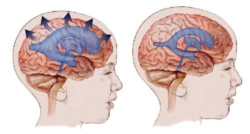 Симптомы внутричерепного давления у мужчин