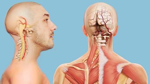 Чем лечиться при синдроме позвоночной артерии