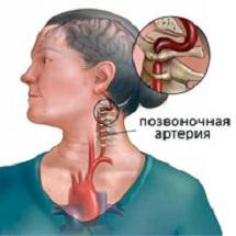 Синдром позвоночной артерии причины стадии и лечение
