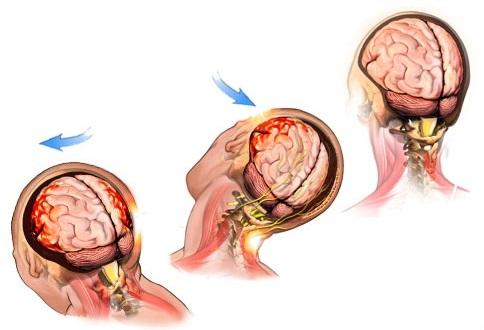 Тяжелое сотрясение головного мозга