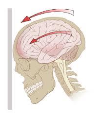 Сотрясение головного мозга – последствия в будущем