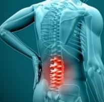 Пояснично-крестцовый радикулит симптомы и медикаментозное лечение