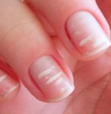 Что означают белые пятнышки на ногтях рук