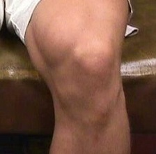 Как лечить болезнь Шляттера коленного сустава