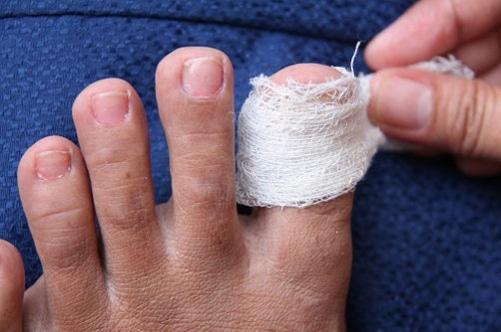 Ноготь на ноге вростает в кожу что делать