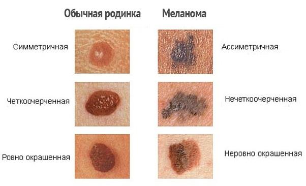 Как проявляется меланома кожи 1 стадии
