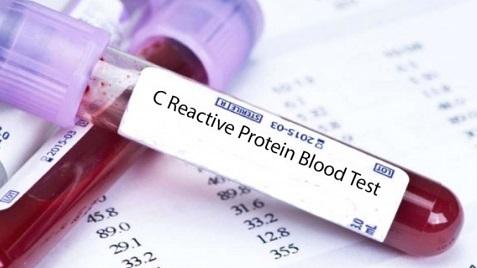С реактивный белок что это такое