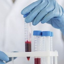 С реактивный белок норма у женщин
