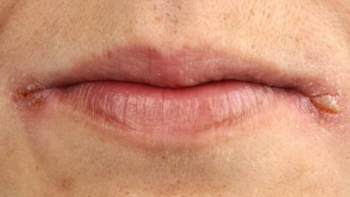 Как лечить трещины на губах, трещинки в уголках губ