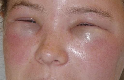 Отек квинке симптомы лечение фото