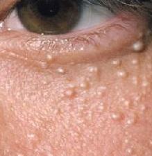 Жировики на лице причины как избавиться