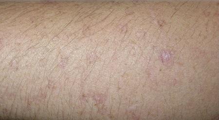 Рак кожи - симптомы и признаки. Как выглядит рак кожи на начальной стадии?