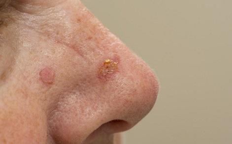 Сколько живут с базальноклеточным раком кожи
