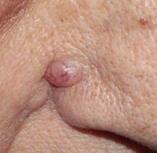 Базалиома кожи ушной раковины лечение. Что такое базалиома