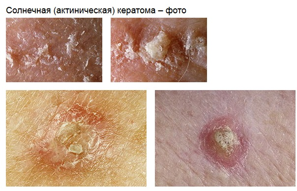 Кератома кожи - фото симптомов, причины, особенности лечения